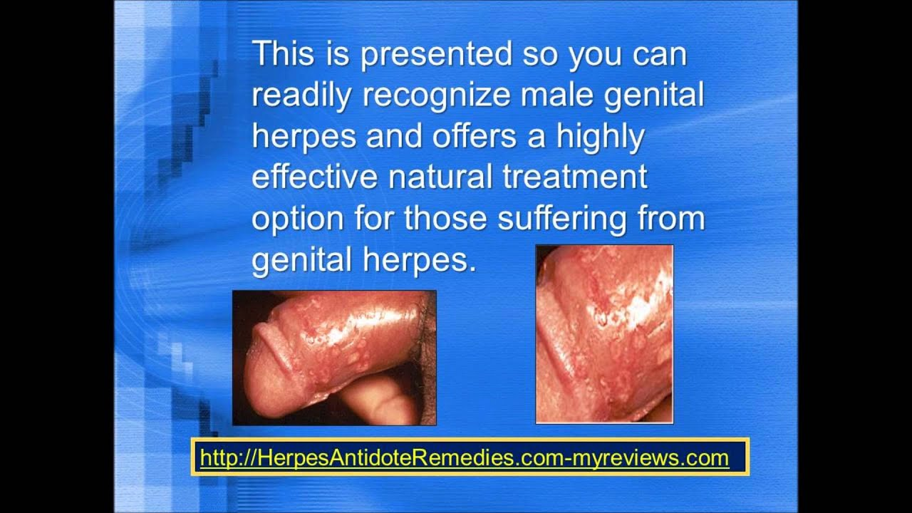How to treat genital herpes 92