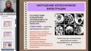 8 Патофизиология почек  Почечная недостаточность