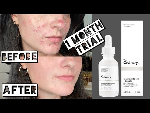 TESTING THE ORDINARY NIACINAMIDE AND ZINC FOR MY ACNE SCARRING FOR 1 MONTH