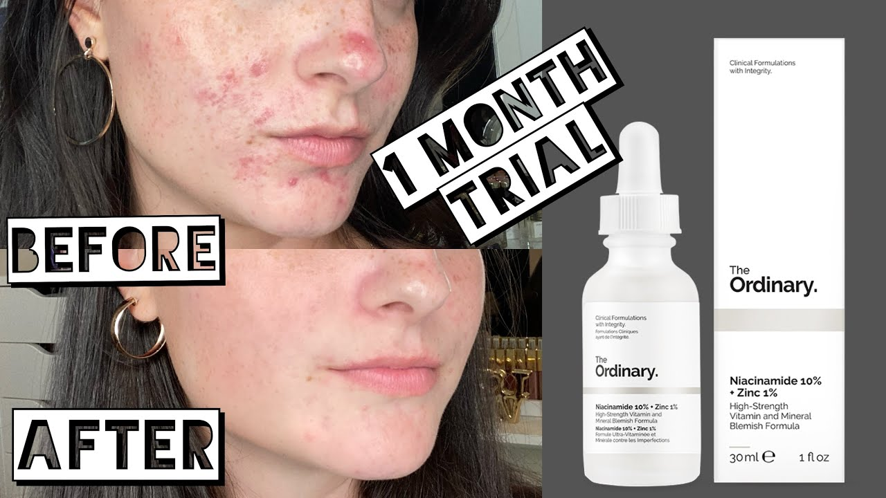 Testing The Ordinary Niacinamide And Zinc For My Acne Scarring For 1 Month Youtube