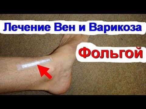 Народные методы лечения варикоза на ногах: актуальные
