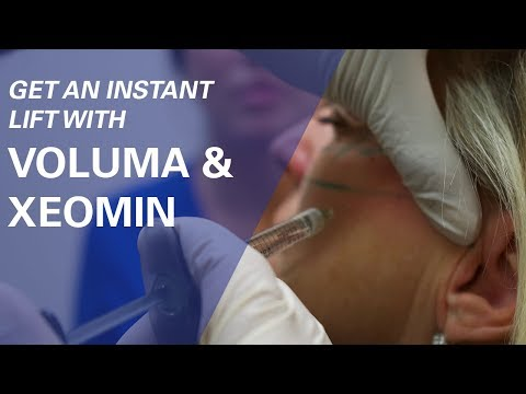 Get an Instant Lift with Voluma Filler and Xeomin