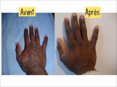 traitement psoriasis cuir chevelu naturel