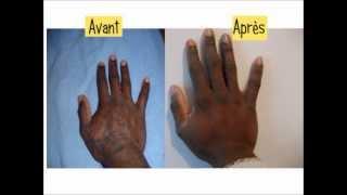traitement psoriasis cuir chevelu traitement naturel