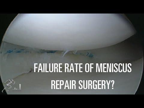 Failure Rates Of Meniscus Repairs