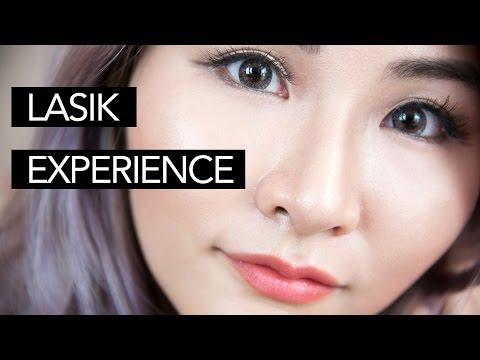 My Lasik Surgery Experience