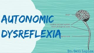 Autonomic Dysreflexia for Nursing Students