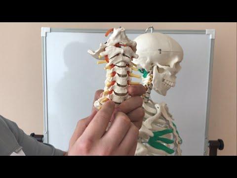видео: Позвоночная артерия. Как я исправил зрение. Головокружение. Головная боль