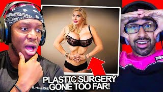 SIDEMEN REACT TO PLASTIC SURGERY GONE TOO FAR?