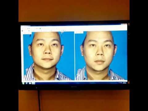 3D Facial Simulator - เครื่องถ่ายภาพแสดงภาพ 3 มิติ
