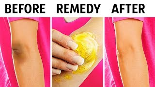 10 Natural Tricks to Remove Dark Knees and Elbows thumbnail