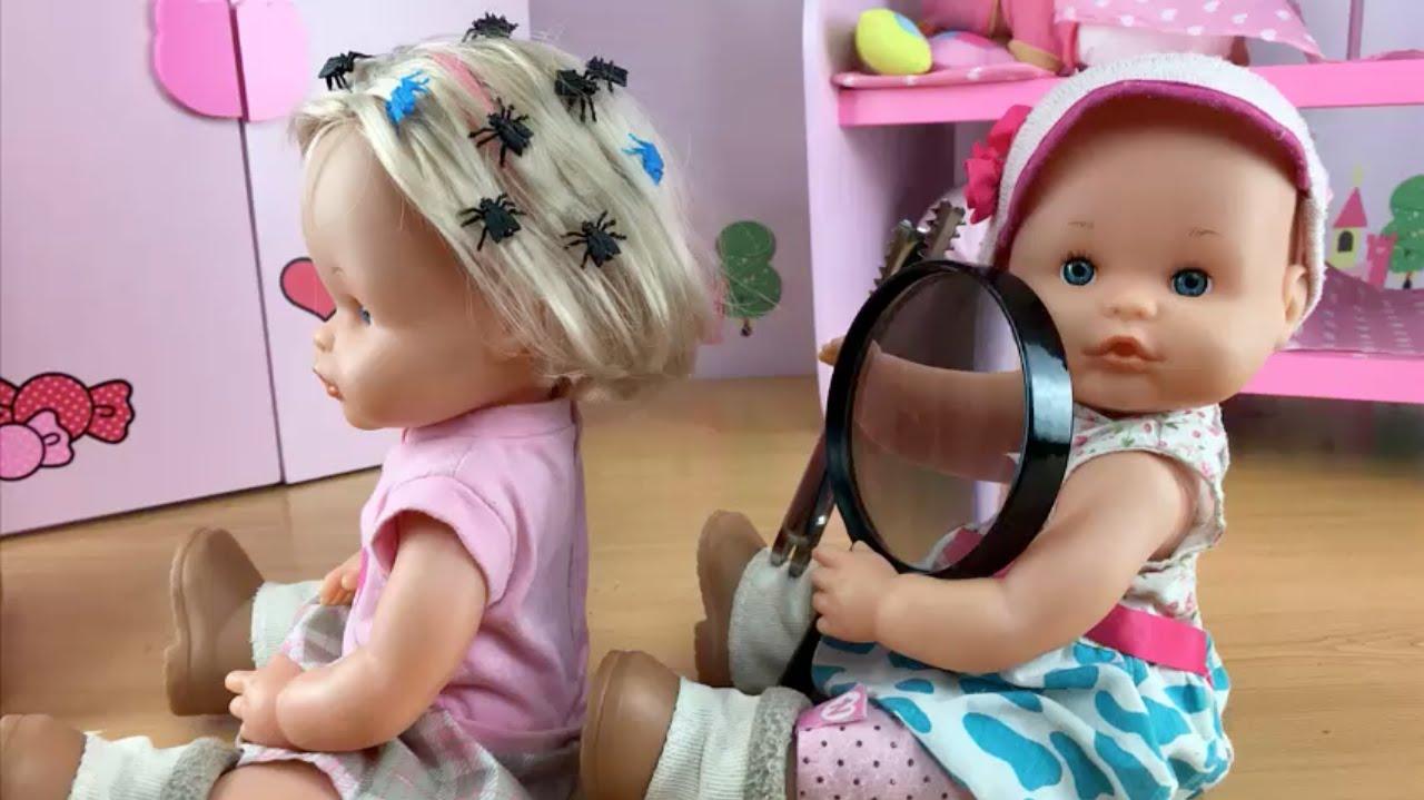 imagenes de bebes con piojos