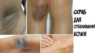 Как отбелить колени, локти, шею, подмышки быстро/ Результаты конкурса