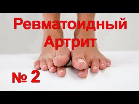 Ревматоидный артрит. Причины, симптомы, современная