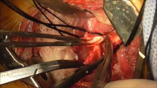 Collateral Circulation in Coarctation of Aorta   Made Easy.