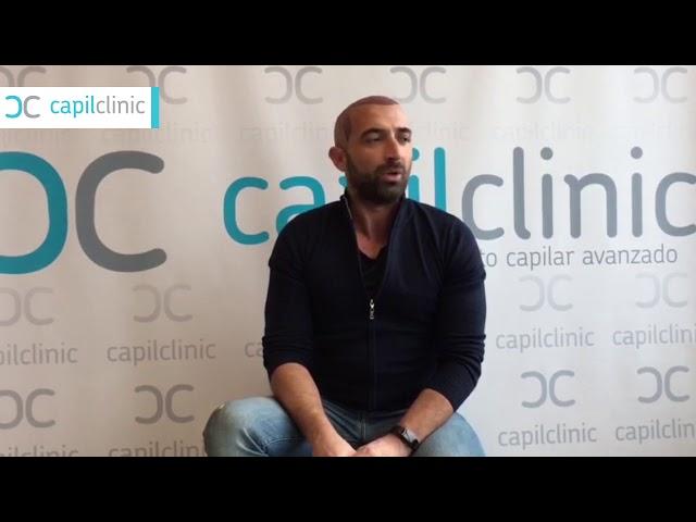 Testimonianza di Presti dopo aver realizzato il trapianto di capelli - CapilClinic