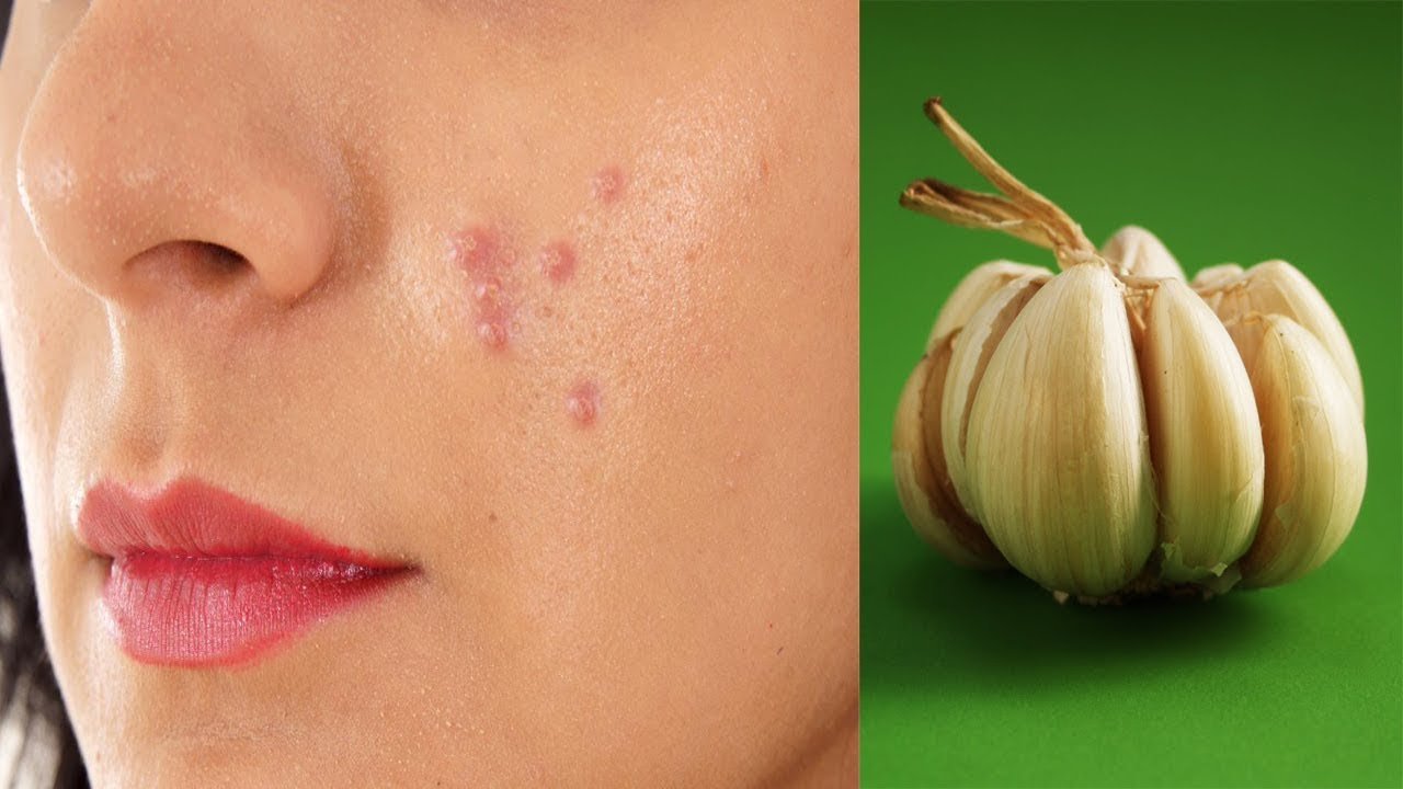 how to use garlic to cure acne | how to use garlic for acne, pimples