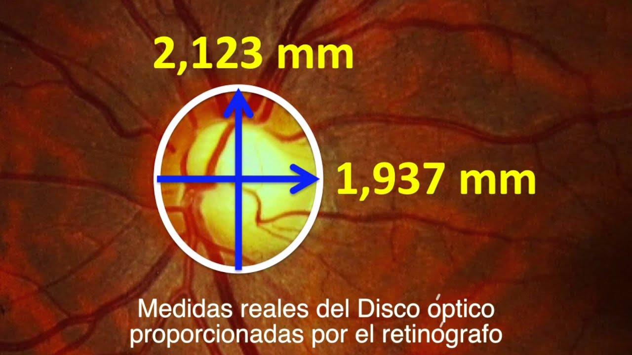 Fondo de ojo - Parte I - Disco óptico o papila - Centro de ...