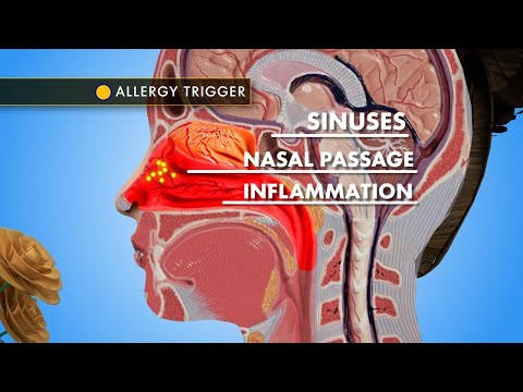 Allergy Week: Beat Nasal Congestion