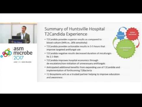 ASM Microbe 2017 -  Jonathan D. Edwards, PharmD: Superior Results with T2Candida