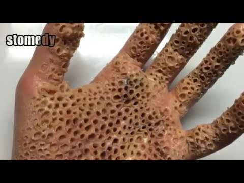 Extreme Trypophobia Hand Trypophobia Disease Is Real Or Fake