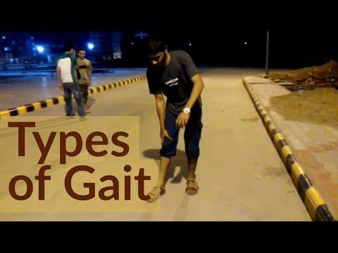TYPES OF GAIT