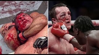 Top 10 Worst Injuries in UFC History [18+] - Scariest MMA Fight Injuries & Knockouts