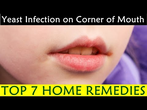 yeast-infection-on-corner-of-mouth---causes,-symptoms,-prevention,-home-remedies