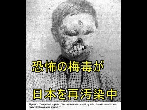 【閲覧注意】【テレビでは流さないニュース】 梅毒が2017年に大流行の恐れ どんな症状?最悪死の危険も。