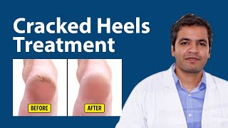 Cracked Heels Treatment and Home Remedy to Heal Your Cracked Heels #CrackHeels