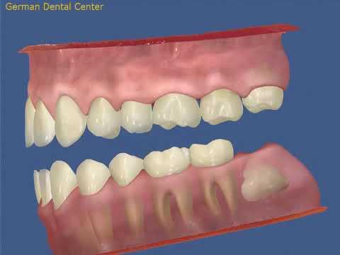 Дистопия 38 зуба