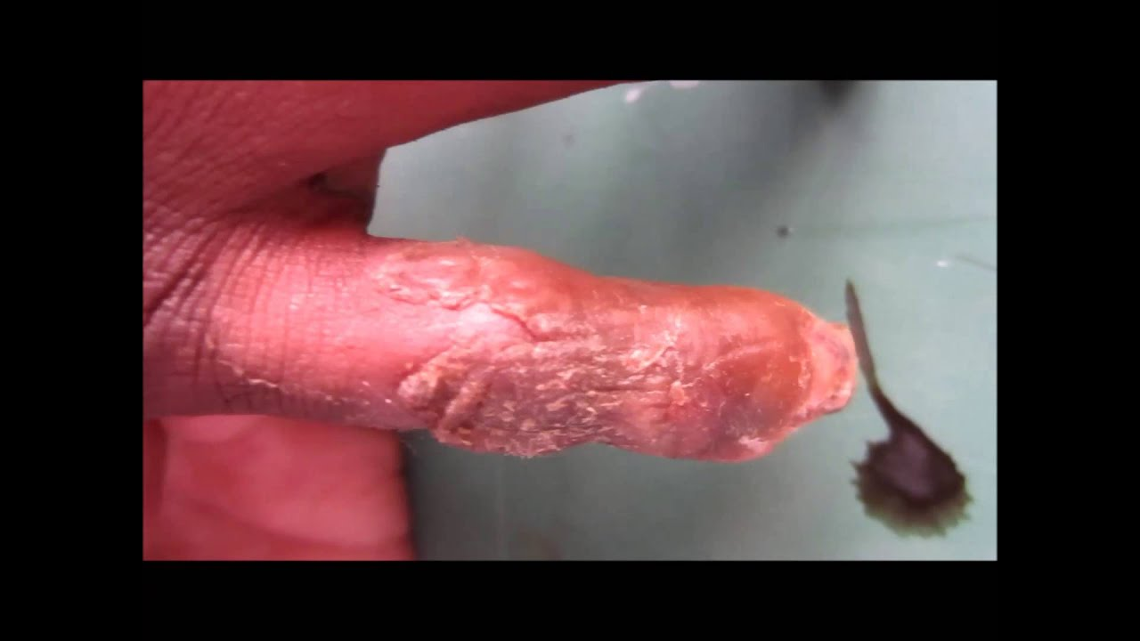 Why Is There Skin Peeling With Itchy White Dots On My Glans Penis
