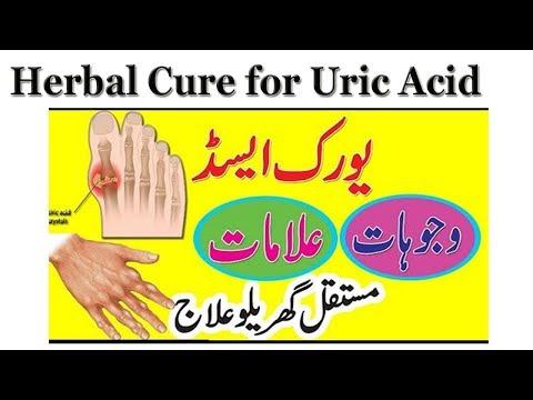 Cure Uric Acid At Home || Causes, Symptoms || Uric Acid Ka Ilaj In Hindi | Urdu || Health Tips