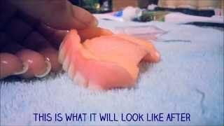 Denture Repair Home Witht Doc Repair Kit Updated
