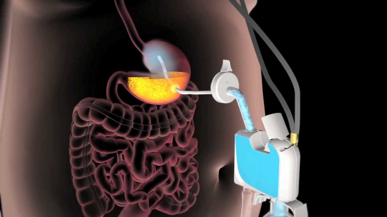 acido urico pastillas bajar acido urico medicina natural acido urico bajo en orina
