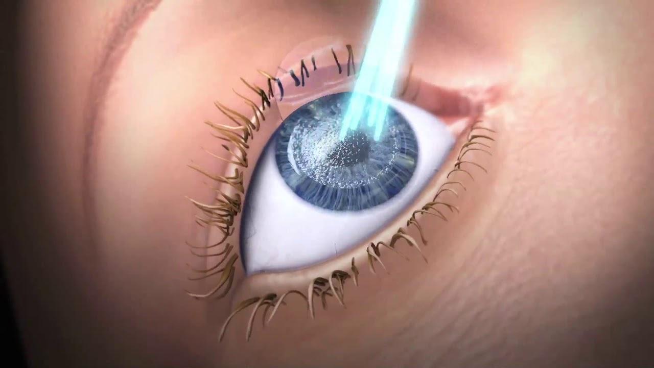 ismételt lézeres látáskorrekció