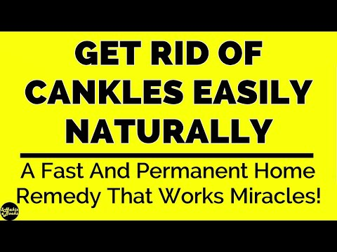 The Safe, Healthy, Surgery Free Method For Treating Your Cankles At Home!