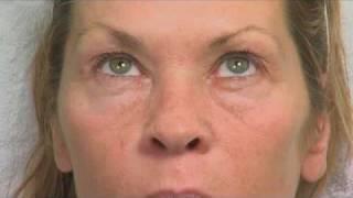 Laser Eyelid Surgery (Blepharoplasty) PT 1