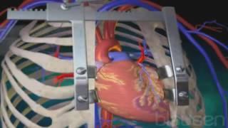 Кардиохирургия   Аорто коронарное шунтирование   коронарных артерий без АИК Стентирование   хорошая(, 2016-09-15T23:13:00.000Z)