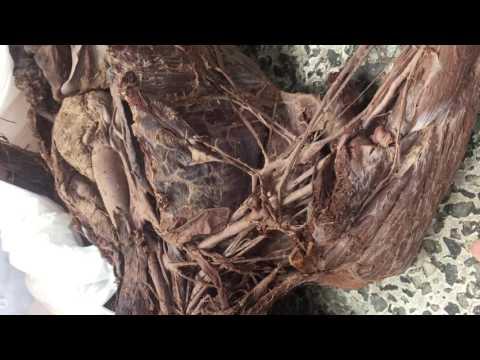 сплетение шейного ветви и плечевого ветви ( 2 )