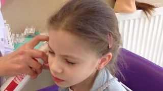 Прокалывание ушей сиситемой 75  ( system 75 )