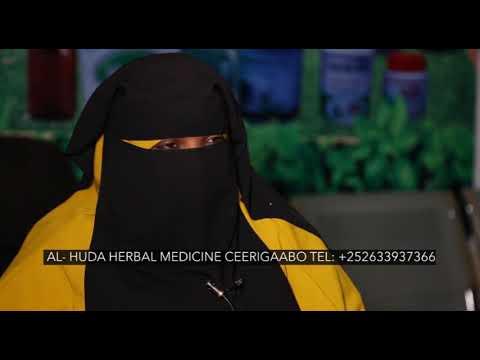 Cudurka Kalyaha oo daawo loo helay Al Huda Herbal Medicine #Herbalmedicine
