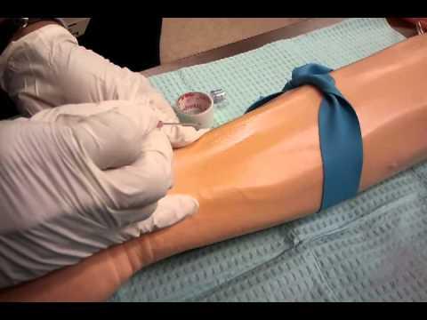 Steps to start an IV
