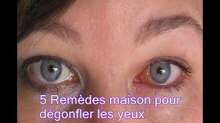 5 Remèdes maison pour dégonfler les yeux