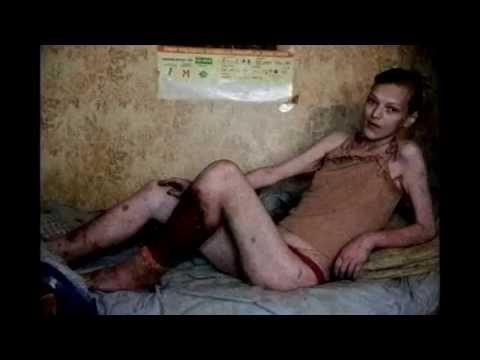 УЖАС Наркологического диспансера ШОК!!! реальный рассказ санитара о наркоманах, страшная история