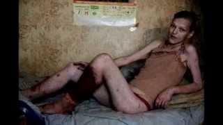 УЖАС Наркологического диспансера ШОК!!! реальный рассказ санитара о наркоманах, страшная история(, 2015-04-06T16:52:29.000Z)
