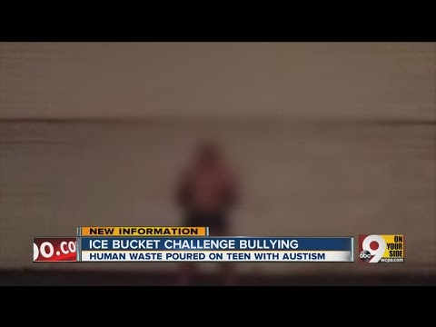 Ohio teen bullied while doing ice bucket challenge for charity