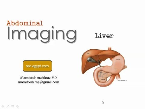 Imaging of the Liver - DRE 8 - Dr Mamdouh Mahfouz