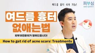 [ENG] 여드름 흉터 없애는법 피부과전문의 피부심이 알려드립니다!/How to get rid of acne scars: Treatments