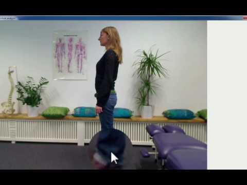Posture Analysis Software | Speedy Assessment